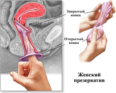 domohozyaykoy-protiv-kak-vvodit-zhenskiy-prezervativ-konchaet-ochen-lyubit